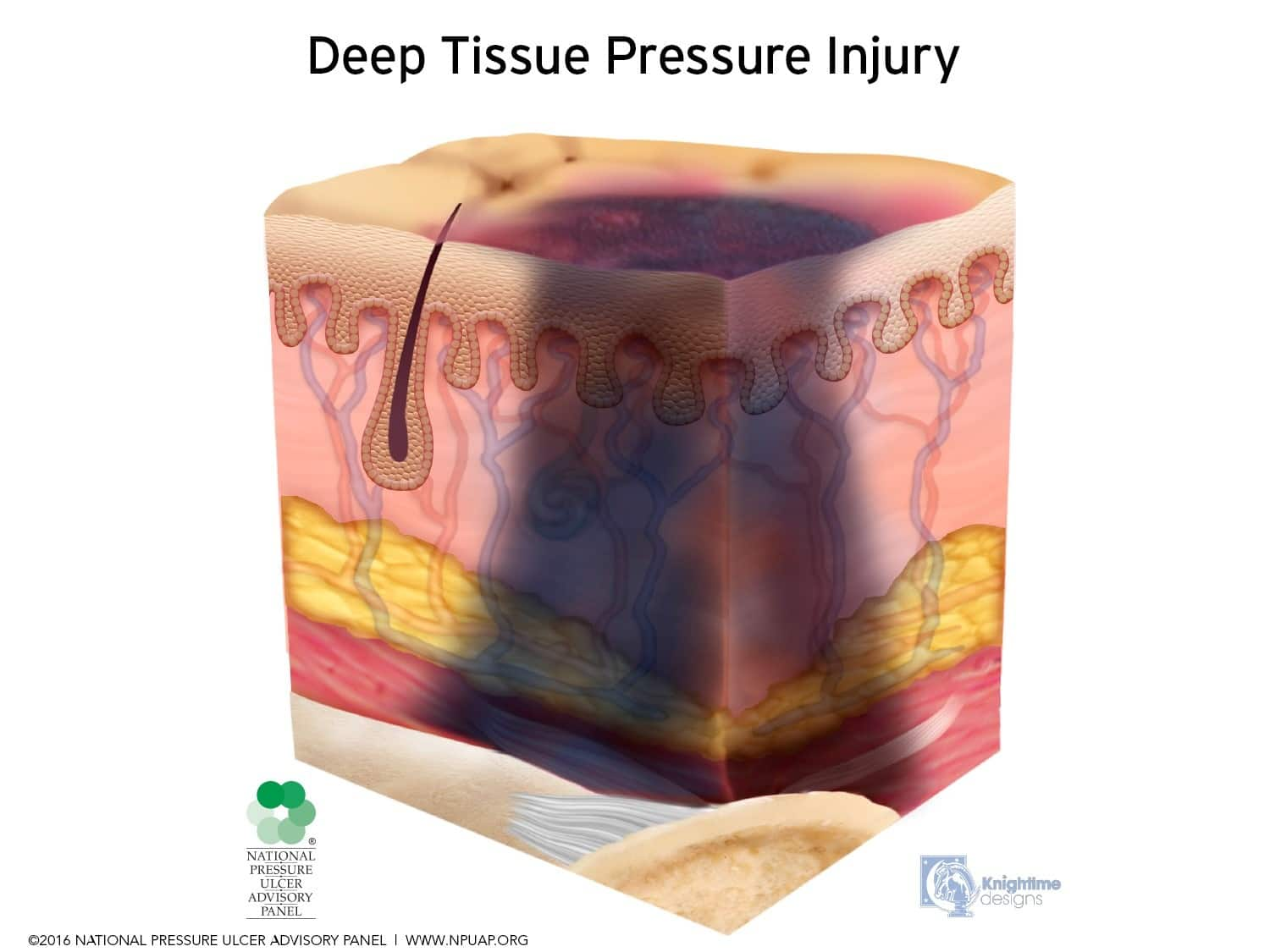 Deep-Tissue-Pressure-Injury-April-2016
